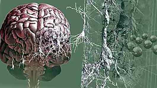 Особое отложение в головном мозге, наблюдаемое при болезни Альцгеймера